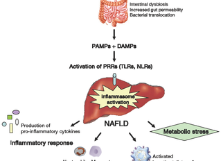 Liposomal Curcumin for Non-alcoholic Fatty Liver Disease (NAFLD)