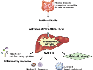 Liposomal Curcumin for Non-alcoholic Fatty Liver Disease (NAFLD)