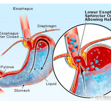 Integrative Approaches To Gastroesophageal Reflux Disorder (GERD)