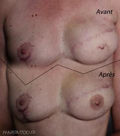 tatouage auréole sein