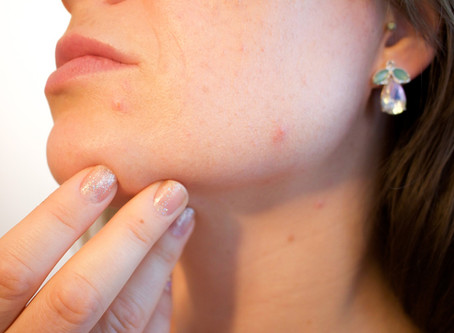 Top Acne Fighting Tips!