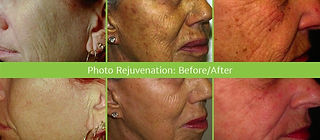 IPL, Photo Facial, Laser Skin Care