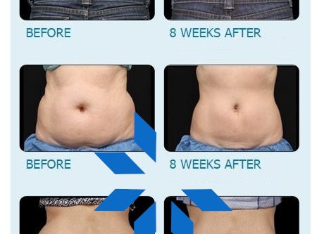 Did you know we could freeze fat? That's right, CoolSlimming is now available at Bel Viso!