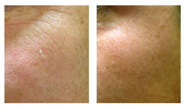 Microneedling available at Pinehust Wellness an Urgent Care
