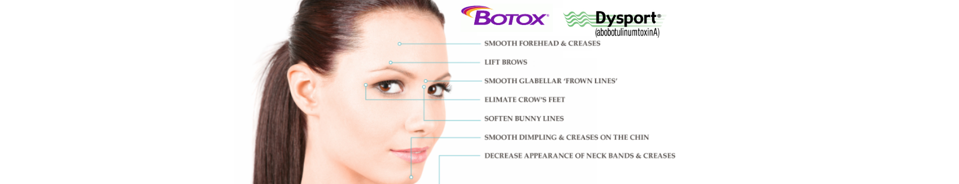 botox and dysport