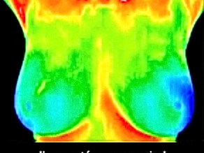 My First Thermography Experience