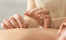 AcupunctureFB.jpg