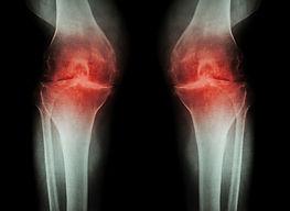 osteoatrose.jfif
