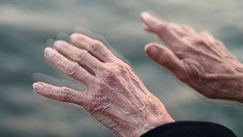 Parkinson3.jpg
