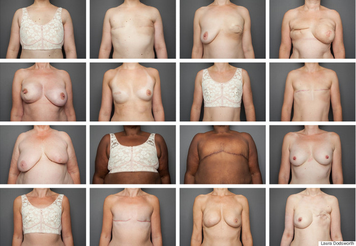 MASTECTOMY BRAS VS CANCER (BEAUTY VS BEAST)