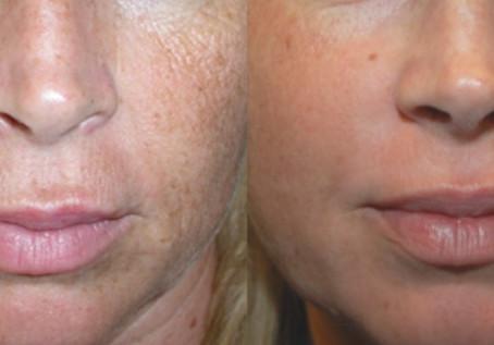 El láser CO2: La mejor tecnología para cicatrices de acné y rejuvenecimiento facial