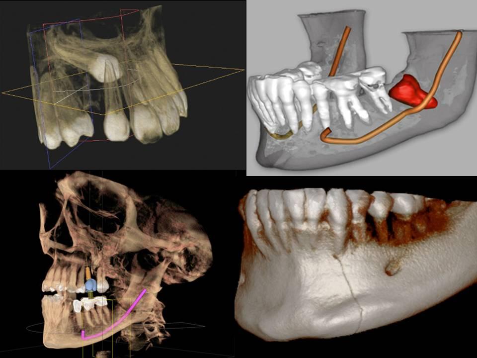 CBCT-Dental-Imaging