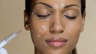 Ritidoplastia: a técnica de rejuvenescimento facial