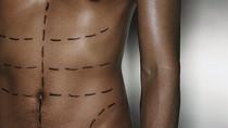 A crescente tendência dos implantes masculinos