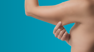 Cirurgia plástica nos braços: como solucionar a flacidez braquial