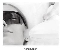 acnelaser.jpg