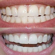 teeth_b_a.jpg