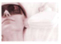 acnelaserbg.jpg