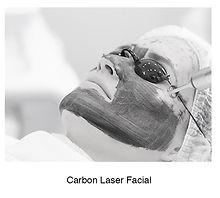 carbonlaser.jpg