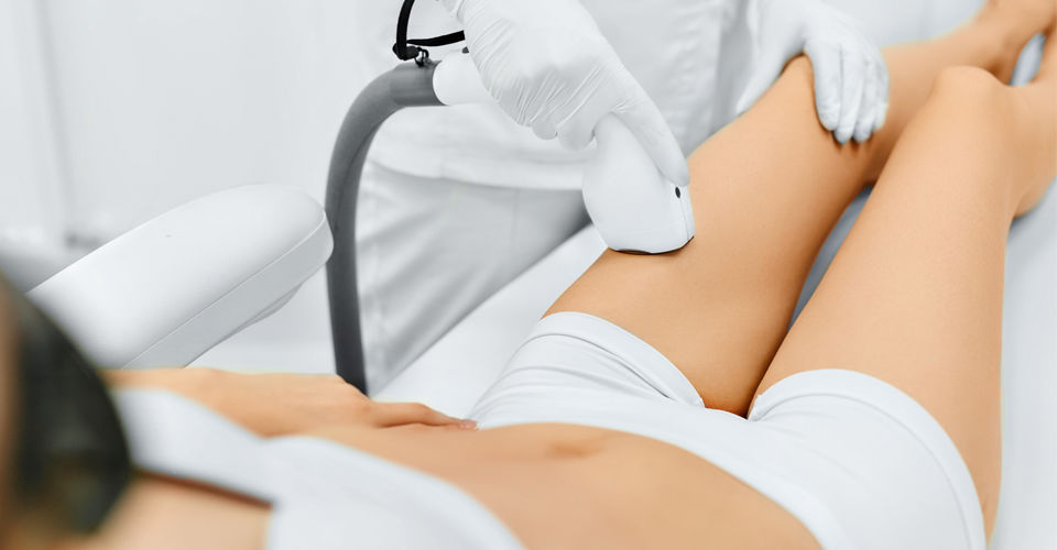 laser-hair-removal-960x500.png