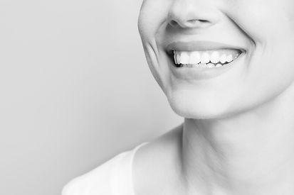 Ästhetische Zahnmedizin Dr. Vesela Burkert