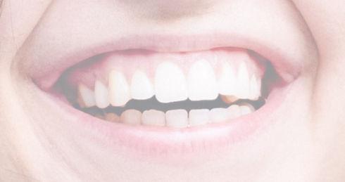 Parodontologie Dr. Vesela Burkert