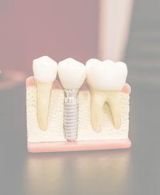 Wurzelkanalbehandlung Zahnarztparxis Dr. Vesela Burkert