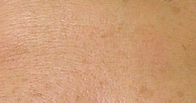 laser skin rejuvenation for fine line reduction, after