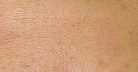 laser skin rejuvenation for fine line reduction, after