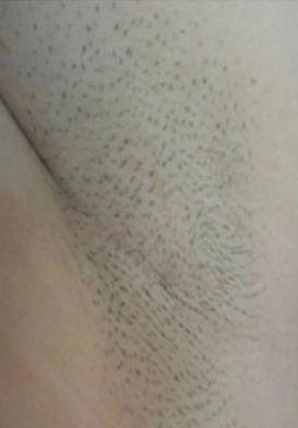 underam-laser-hair-removal-before.jpg