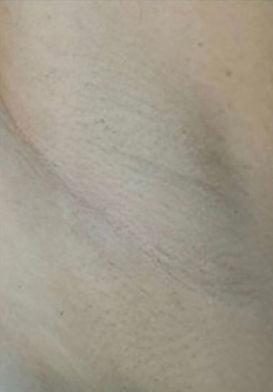 underam-laser-hair-removal-after.jpg