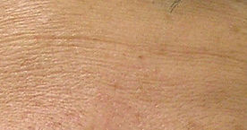 laser skin rejuvenation for fine line reduction, before