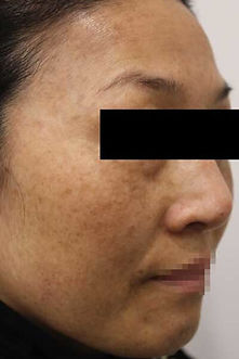 before laser skin rejuvenation