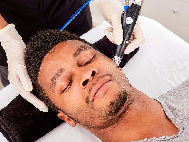 hydrafacial treatment for men in etobicoke ontario
