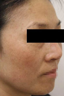 after laser skin rejuvination
