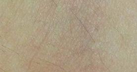 laser skin rejuvenation for vein reduction, after
