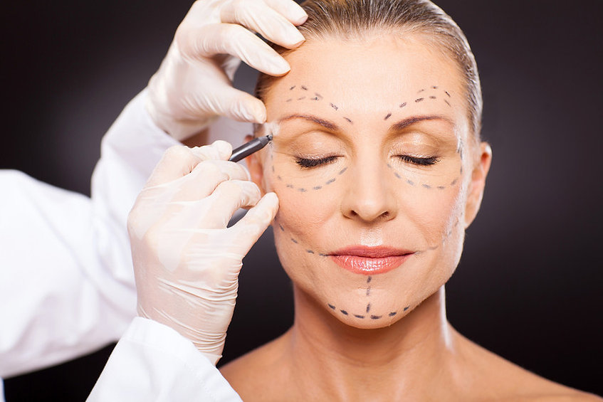 Lines being drawn on face