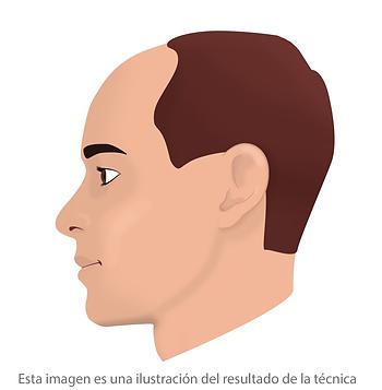 Micropigmentacion capilar basica Facialtec