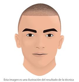 curso de micropigmentacion capilar facialtec academy