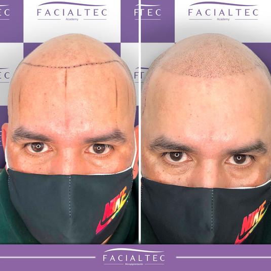 xantes-y-despues-trico-1-facialtec.jpg