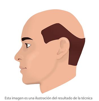 Micropigmentacion capilar avanzada Facialtec