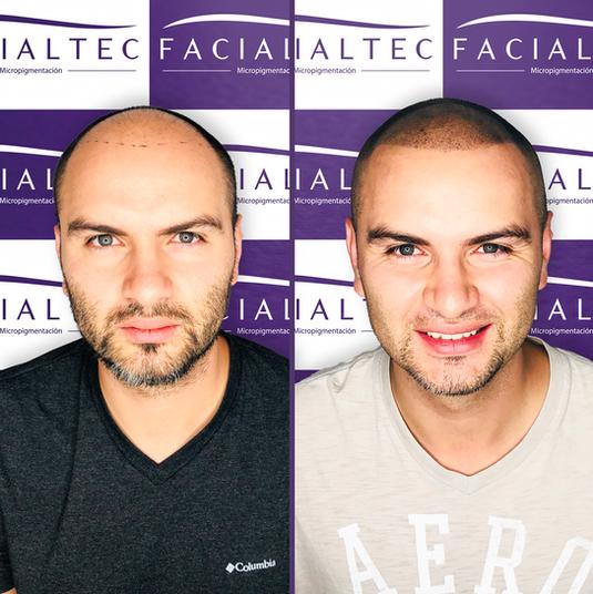 Micropigmentación capilar o tricopigmentación - Facialtec (1) - copia.png