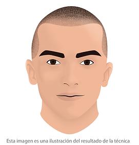 curso micropigmentacion capilar facialtec academy