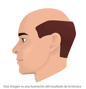 Micropigmentacion capilar completa Facialtec