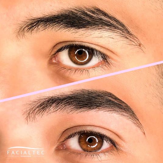 depilacion2-facialtec.jpg