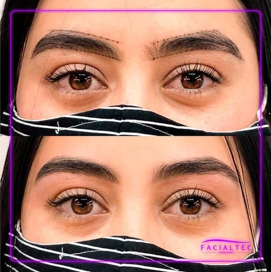 depilacion-facialtec.jpg