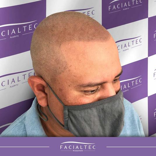 tricopigmentacion-capilar-facialtec.jpg