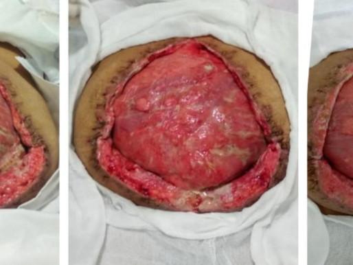 Caso clínico: Abdomen abierto