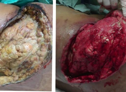 Caso clínico: Absceso zona del glúteo