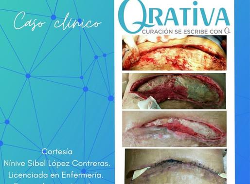 Caso clínico: LPP Estadío 4, sobreviviente de covid